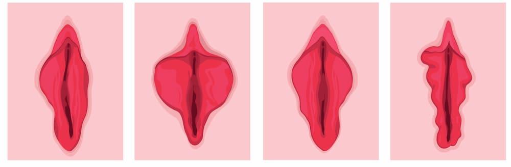ilustração diferentes tipos de vulva
